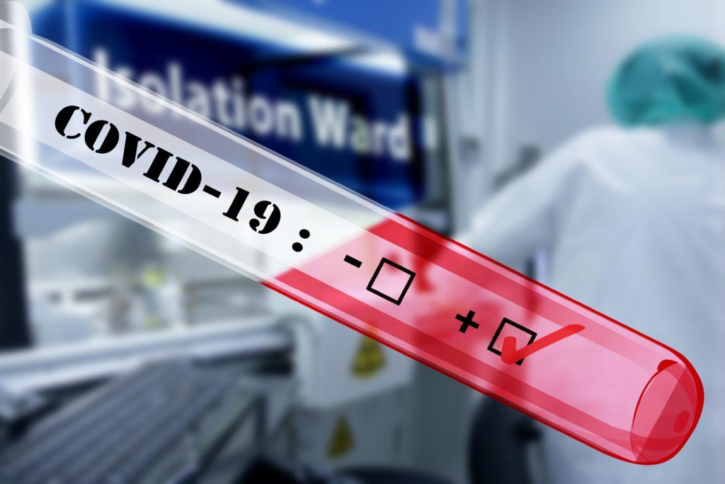 Od początku pandemii zachorowały już 344 osoby